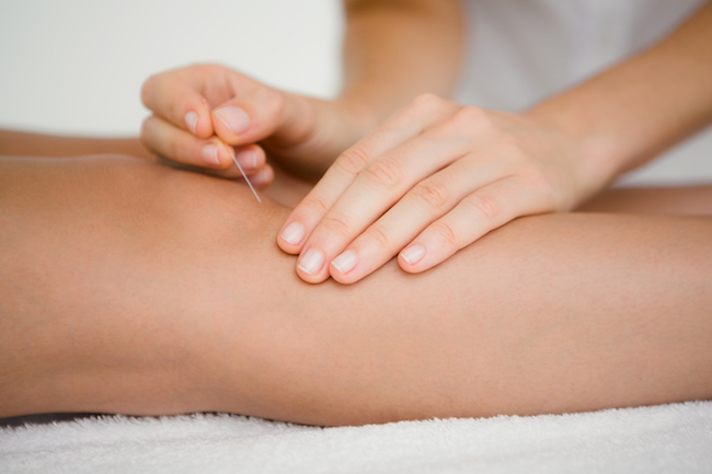 Beechboro-Physiotherapy-Dry-Needling