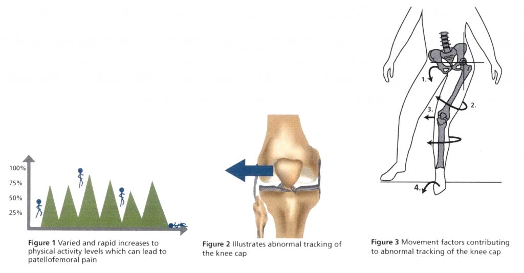 Patellofemoral Pain - Figure 1,2,3